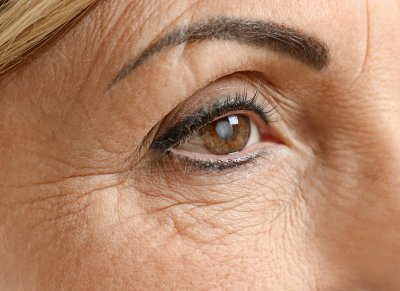 Cataract surgeries at Gerstein Eye Institute
